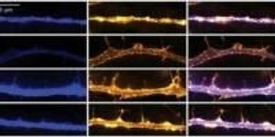 Psychedelic Drugs Promote Neural Plasticity in Rats and Flies