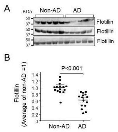 Flotillin Is a Novel Diagnostic Blood Marker of Alzheimer's Disease