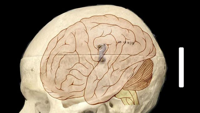 human-brain-size