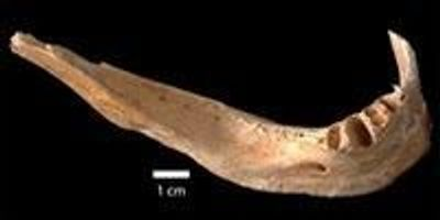 Scientists Calculate Radiation Dose in Bone from Victim of Hiroshima Bombing