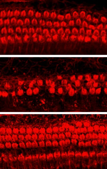 Kenpaullone Protects Cochlear Hair Cells from Cisplatin