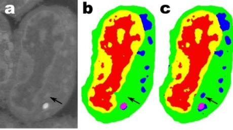 Lymphblastoid Cells
