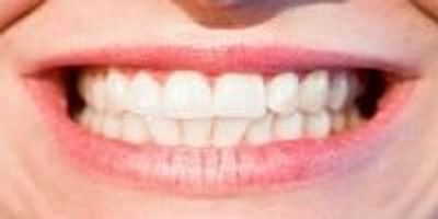 More Evidence of Link Between Severe Gum Disease and Cancer Risk
