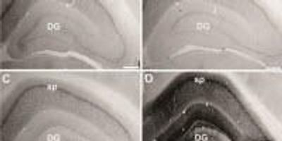 Restoring Aging Genes in Rats