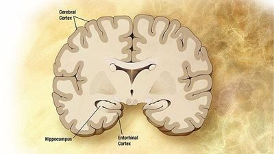New Method Enables Accurate Diagnosis of Alzheimer's Disease