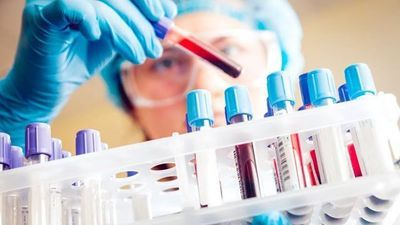 Mayo Researchers Develop New Genetics-Based Prognostic Tool for Myelodysplastic Syndrome
