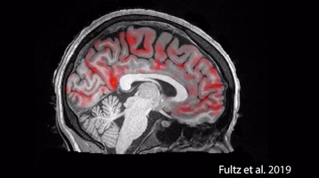 During Sleep, the Brain Exhibits Large-Scale Waves