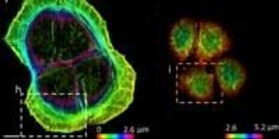 Researchers Create Higher-Quality Pictures of Biospecimens