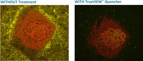 TrueVIEW™ Autofluorescence Quenching Kit