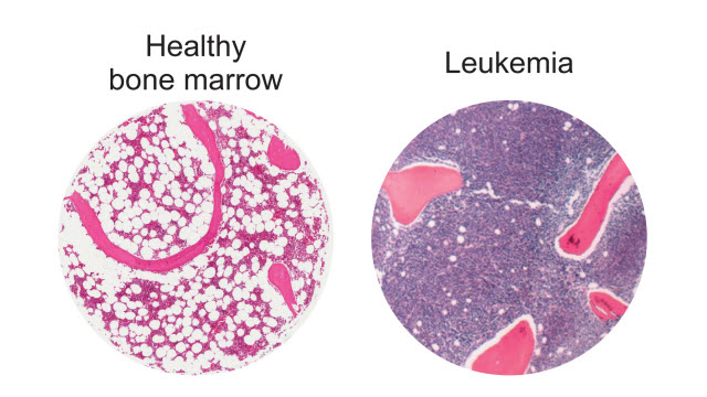 healthy bone marrow vs. Leukemia