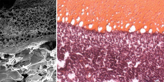 MeTro Gel Tightly Bonds to Injured Lung Tissue