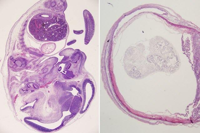Fetuses Treated with Zika Antibody