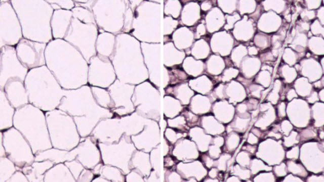 white fat cells
