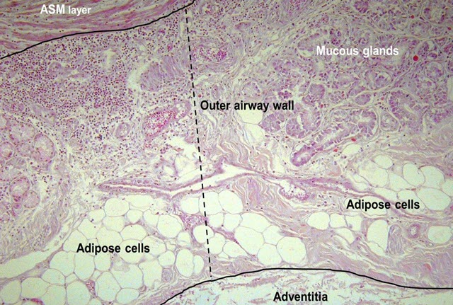 Micrographs of the outer airway wall