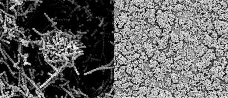 Strep bacteria vs. human milk sugars