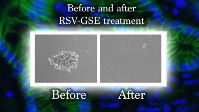 Cancer Stem Cell before and after treatment