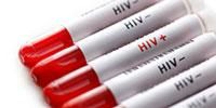 Investigational Vaccine Protected Monkeys from HIV-Like Virus