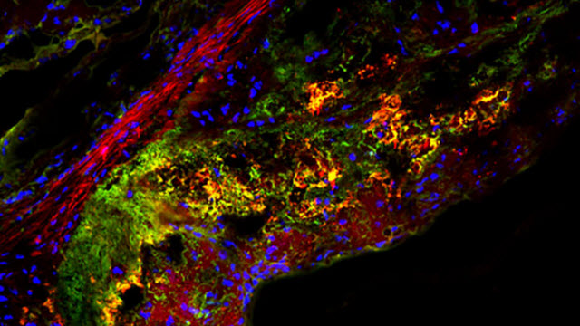Type of sugar may treat atherosclerosis, mouse study shows