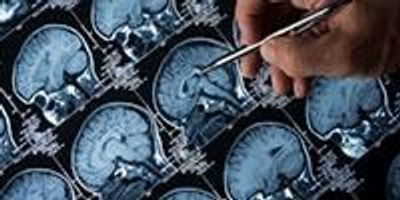 Five Years before Brain Cancer Diagnosis, Changes Detectable in Blood