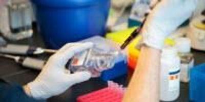 Seemingly Innocuous Virus Can Trigger Celiac Disease