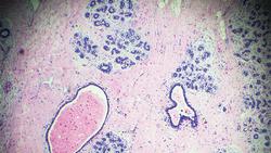 Drug Improves Survival in Metastatic Breast Cancer