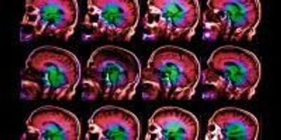 Brain-Aging Gene Discovered