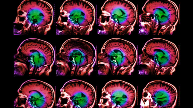 Brain-Aging Gene Discovered