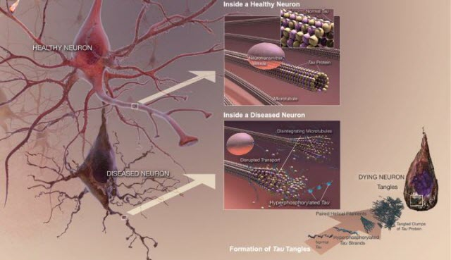 Tau Tangles in a Disease Neuron
