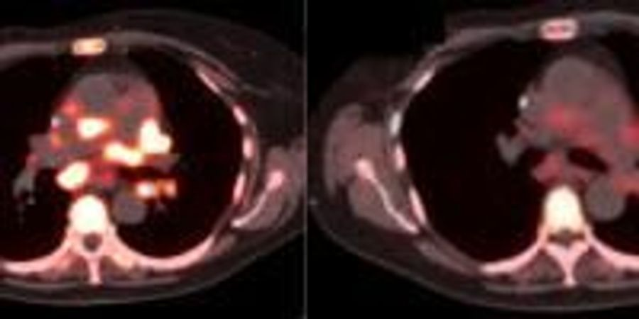 Experts Call for Expansion of Molecular Imaging in Precision Cancer Care