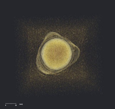 gold nanosphere ringed by polymer patches