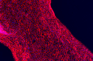 Human proximal tubule cells