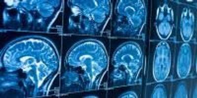 How Can Stress Cause Anxiety? Blame the Brain's Cannabis