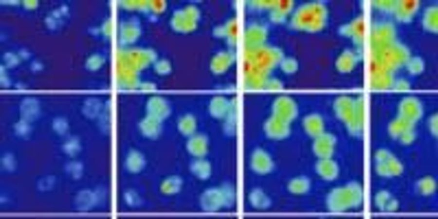 Research Suggests New Tool for Cancer Treatment Based on Cell Type