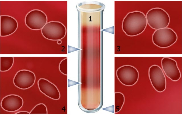Researchers have established new biophysical markers that could help improve the understanding of sickle cell disease treatments