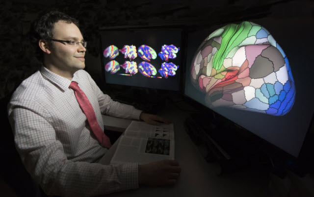 Matthew Glasser, PhD