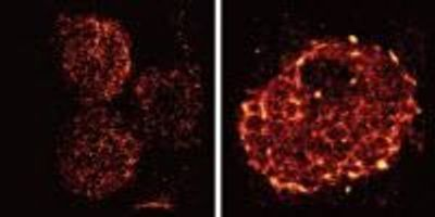 Super-Resolution Microscopy Reveals Unprecedented Detail of Immune Cells' Surface