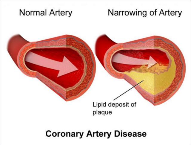 Hops and Coronary Heart Disease