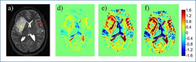 Gadolinium contrast MRI